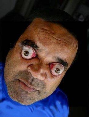 Человек с самыми выпуклыми глазами в мире